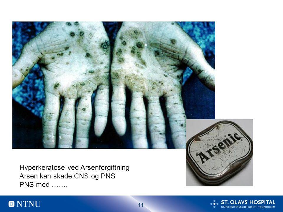 11 Hyperkeratose ved Arsenforgiftning Arsen kan skade CNS og PNS PNS med …….