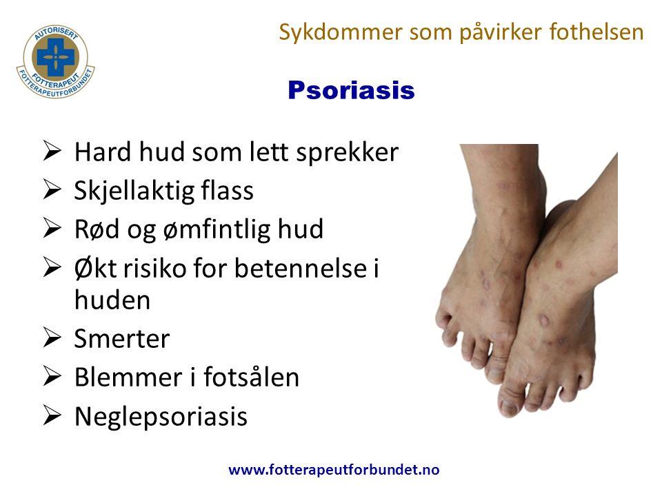 www.fotterapeutforbundet.no Psoriasis  Hard hud som lett sprekker  Skjellaktig flass  Rød og ømfintlig hud  Økt risiko for betennelse i huden  Smerter  Blemmer i fotsålen  Neglepsoriasis Sykdommer som påvirker fothelsen