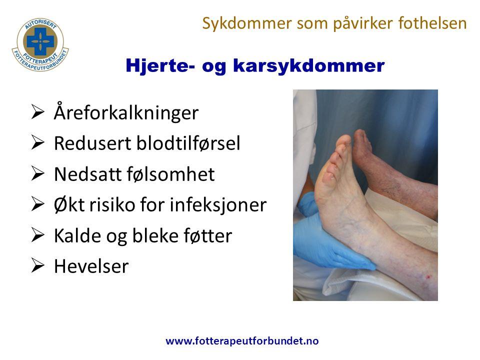 www.fotterapeutforbundet.no Hjerte- og karsykdommer  Åreforkalkninger  Redusert blodtilførsel  Nedsatt følsomhet  Økt risiko for infeksjoner  Kalde og bleke føtter  Hevelser Sykdommer som påvirker fothelsen
