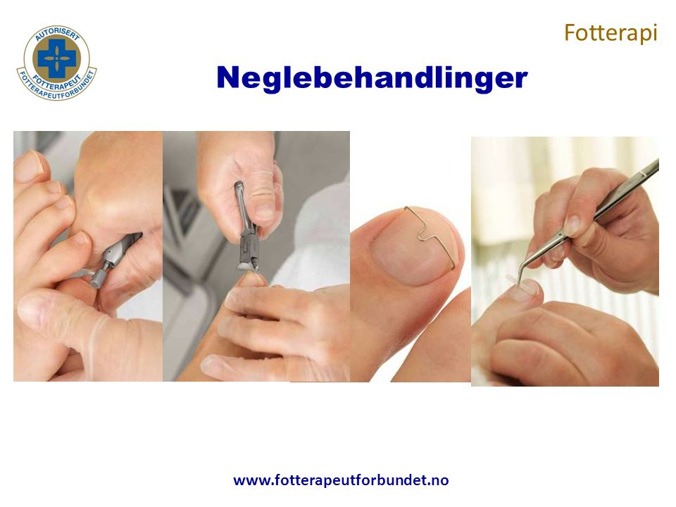 www.fotterapeutforbundet.no Neglebehandlinger Fotterapi
