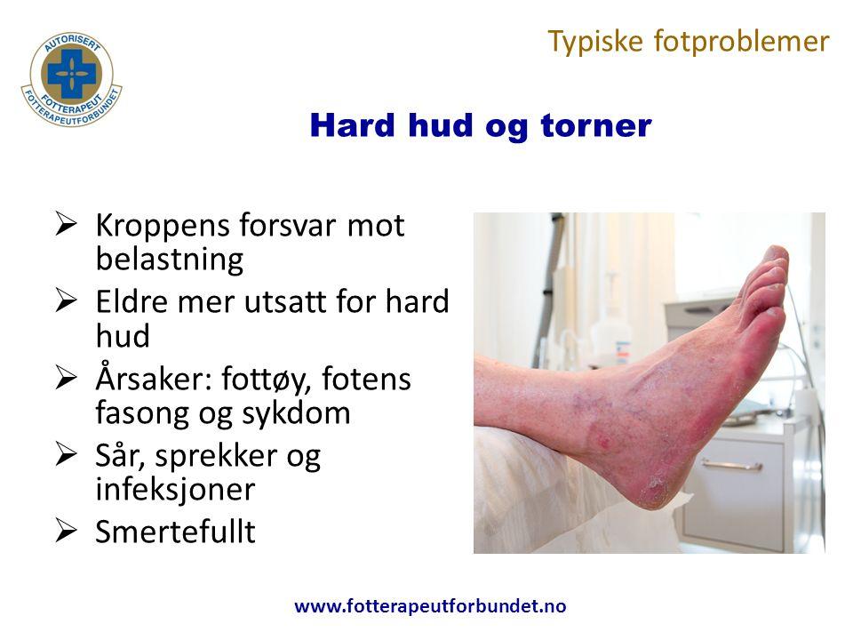 Hard hud og torner  Kroppens forsvar mot belastning  Eldre mer utsatt for hard hud  Årsaker: fottøy, fotens fasong og sykdom  Sår, sprekker og infeksjoner  Smertefullt Typiske fotproblemer
