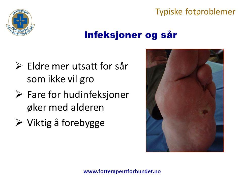 www.fotterapeutforbundet.no Infeksjoner og sår  Eldre mer utsatt for sår som ikke vil gro  Fare for hudinfeksjoner øker med alderen  Viktig å forebygge Typiske fotproblemer