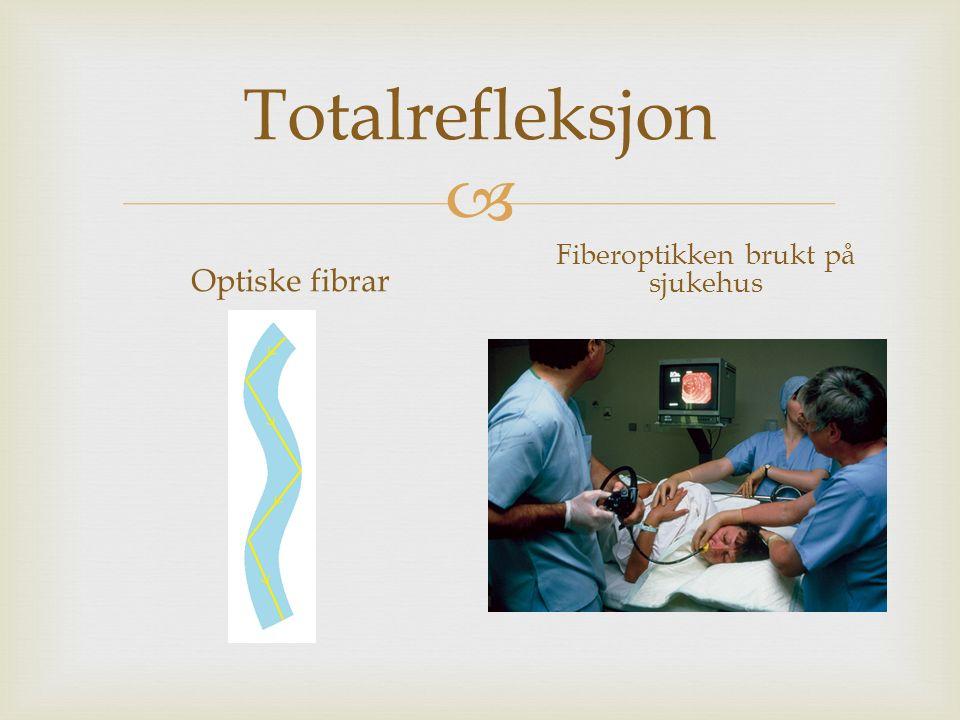  Totalrefleksjon Optiske fibrar Fiberoptikken brukt på sjukehus