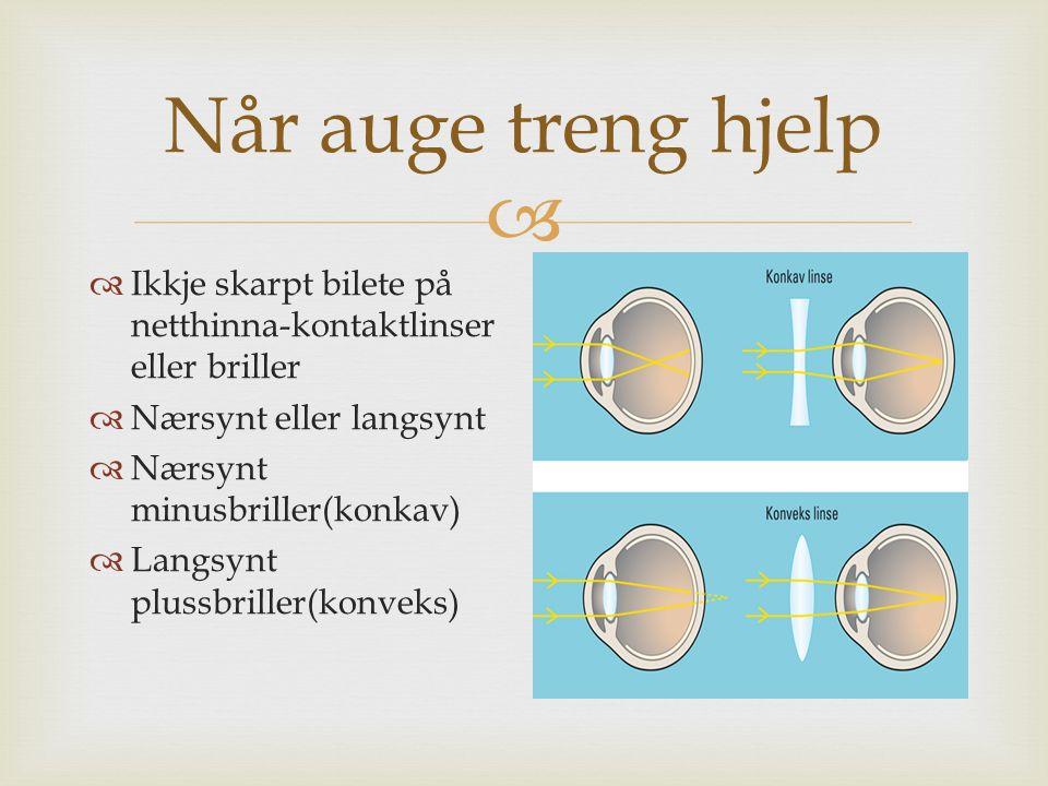  Når auge treng hjelp  Ikkje skarpt bilete på netthinna-kontaktlinser eller briller  Nærsynt eller langsynt  Nærsynt minusbriller(konkav)  Langsynt plussbriller(konveks)