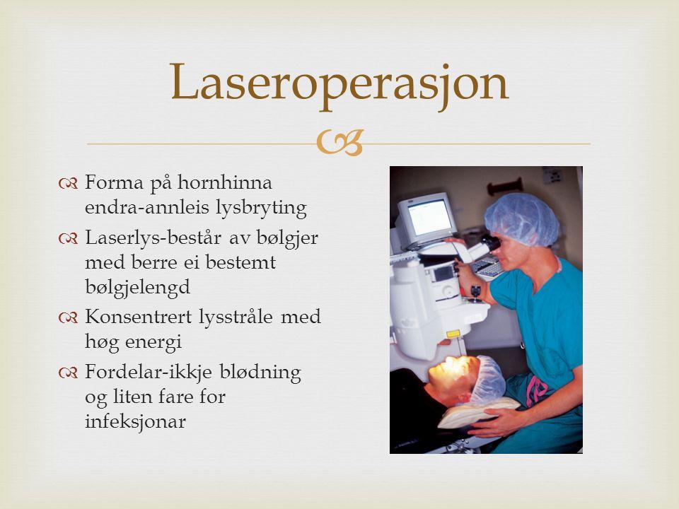 Laseroperasjon  Forma på hornhinna endra-annleis lysbryting  Laserlys-består av bølgjer med berre ei bestemt bølgjelengd  Konsentrert lysstråle med høg energi  Fordelar-ikkje blødning og liten fare for infeksjonar