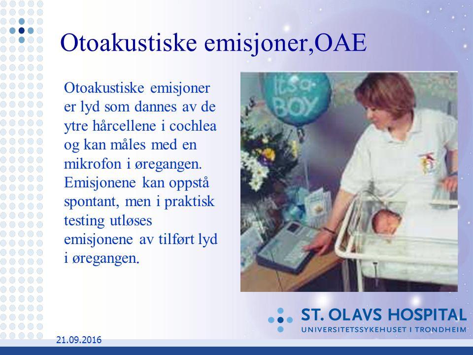 21.09.2016 Otoakustiske emisjoner er lyd som dannes av de ytre hårcellene i cochlea og kan måles med en mikrofon i øregangen.