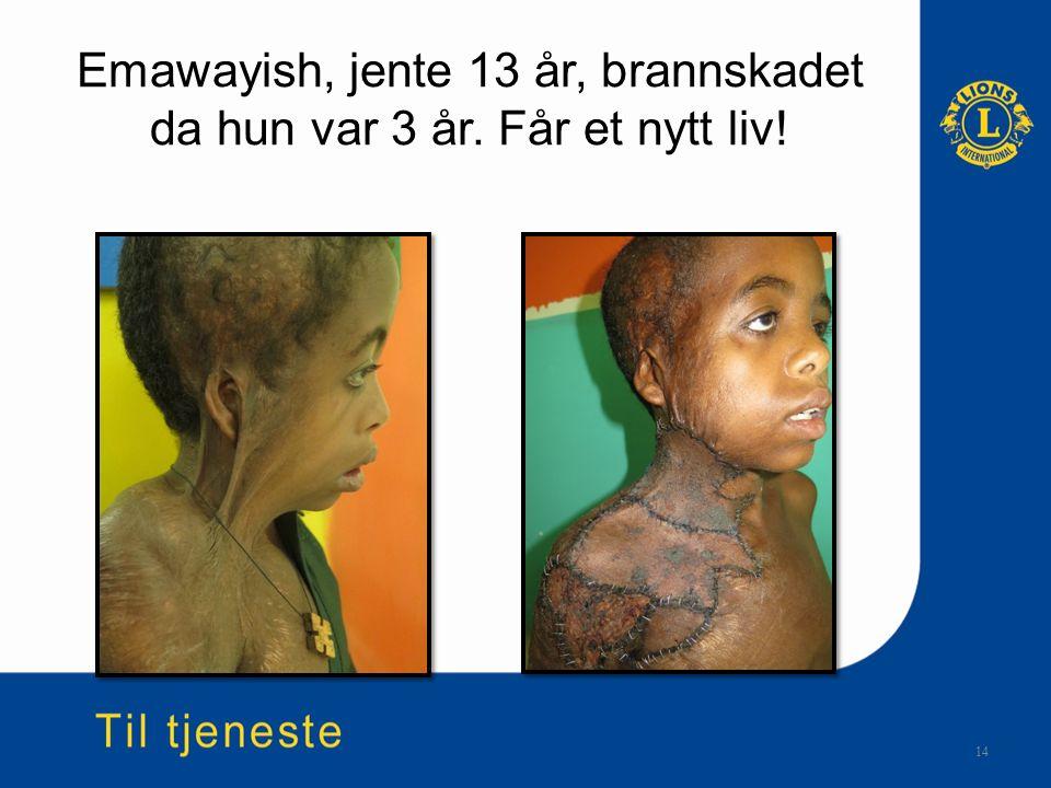 Emawayish, jente 13 år, brannskadet da hun var 3 år. Får et nytt liv! 14