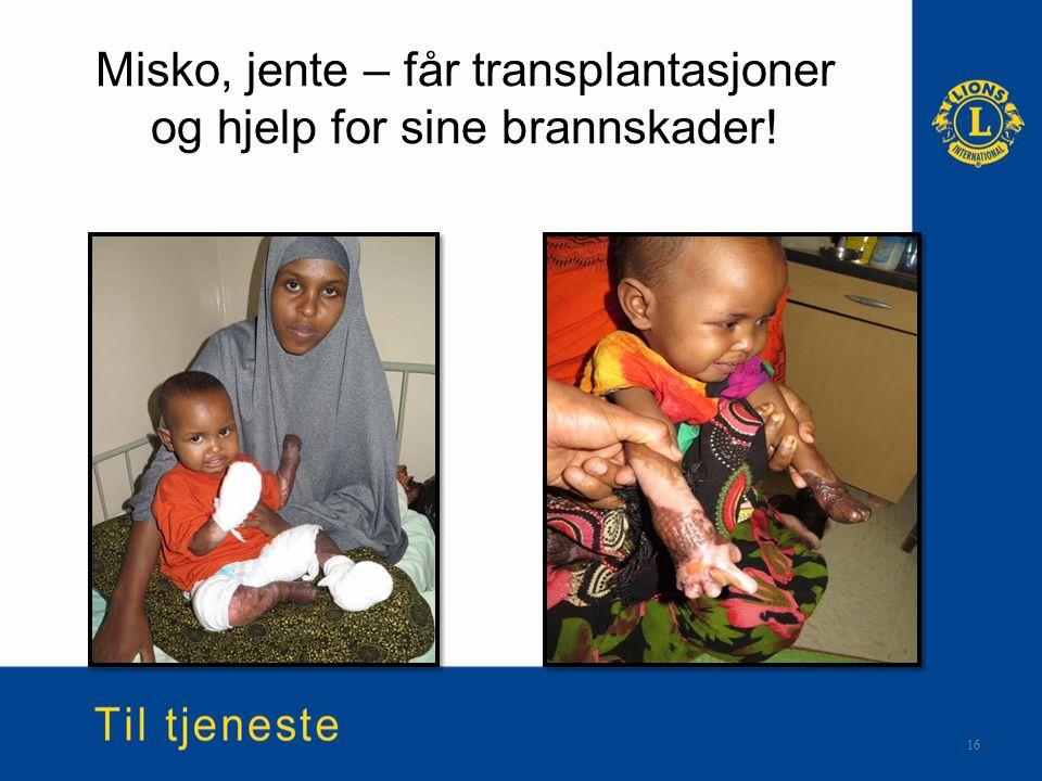 Misko, jente – får transplantasjoner og hjelp for sine brannskader! 16