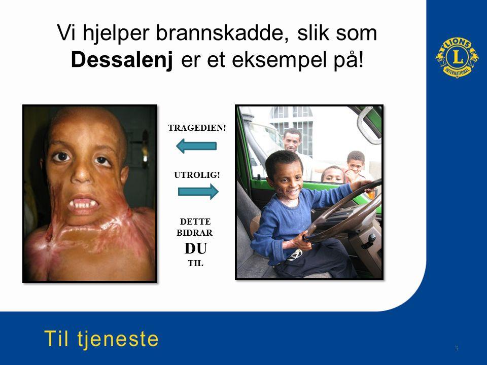 Vi hjelper brannskadde, slik som Dessalenj er et eksempel på.