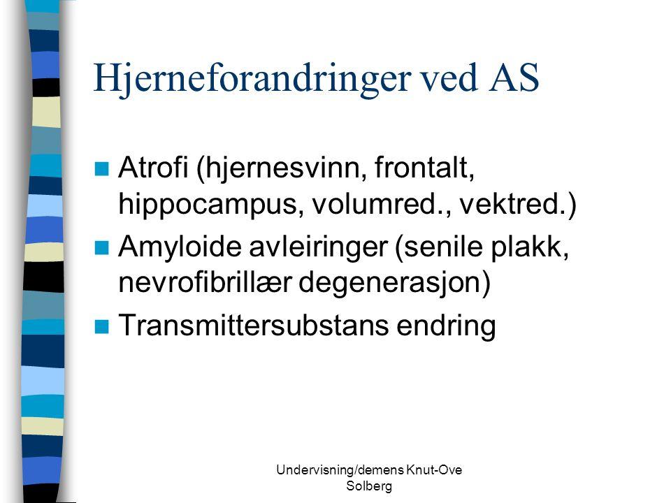 Undervisning/demens Knut-Ove Solberg Hjerneforandringer ved AS Atrofi (hjernesvinn, frontalt, hippocampus, volumred., vektred.) Amyloide avleiringer (senile plakk, nevrofibrillær degenerasjon) Transmittersubstans endring