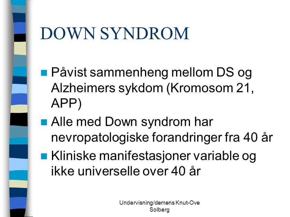 Undervisning/demens Knut-Ove Solberg DOWN SYNDROM Påvist sammenheng mellom DS og Alzheimers sykdom (Kromosom 21, APP) Alle med Down syndrom har nevropatologiske forandringer fra 40 år Kliniske manifestasjoner variable og ikke universelle over 40 år