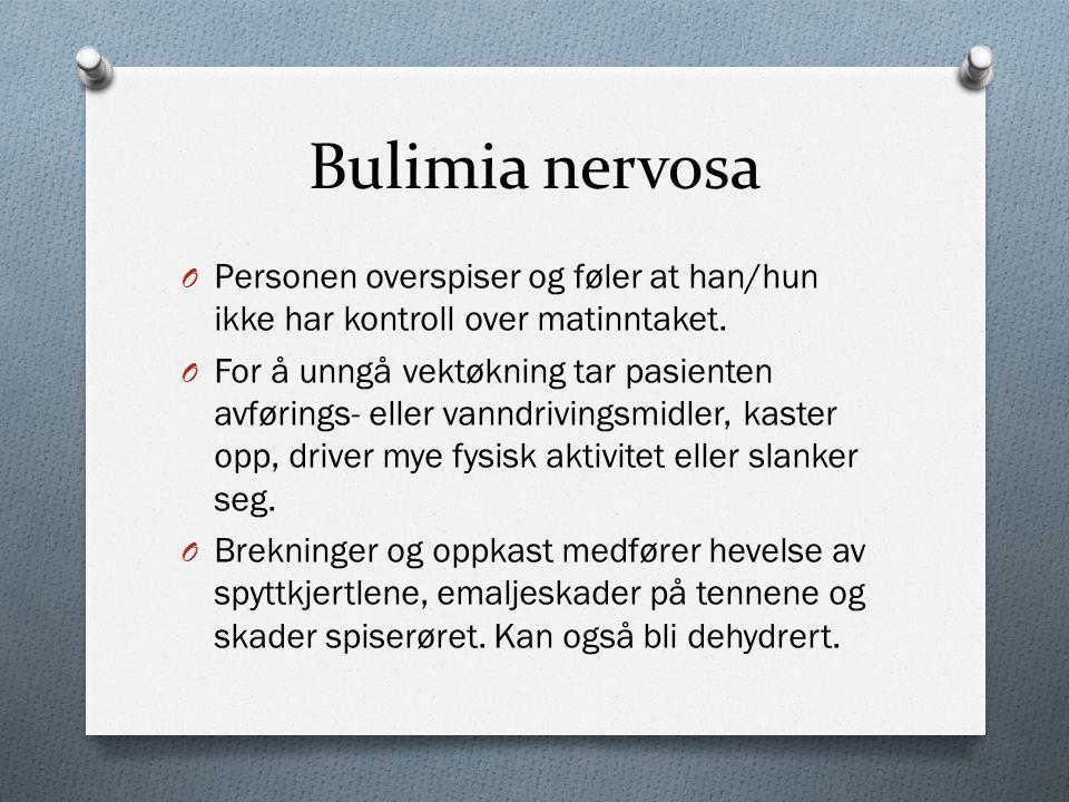 Bulimia nervosa O Personen overspiser og føler at han/hun ikke har kontroll over matinntaket.