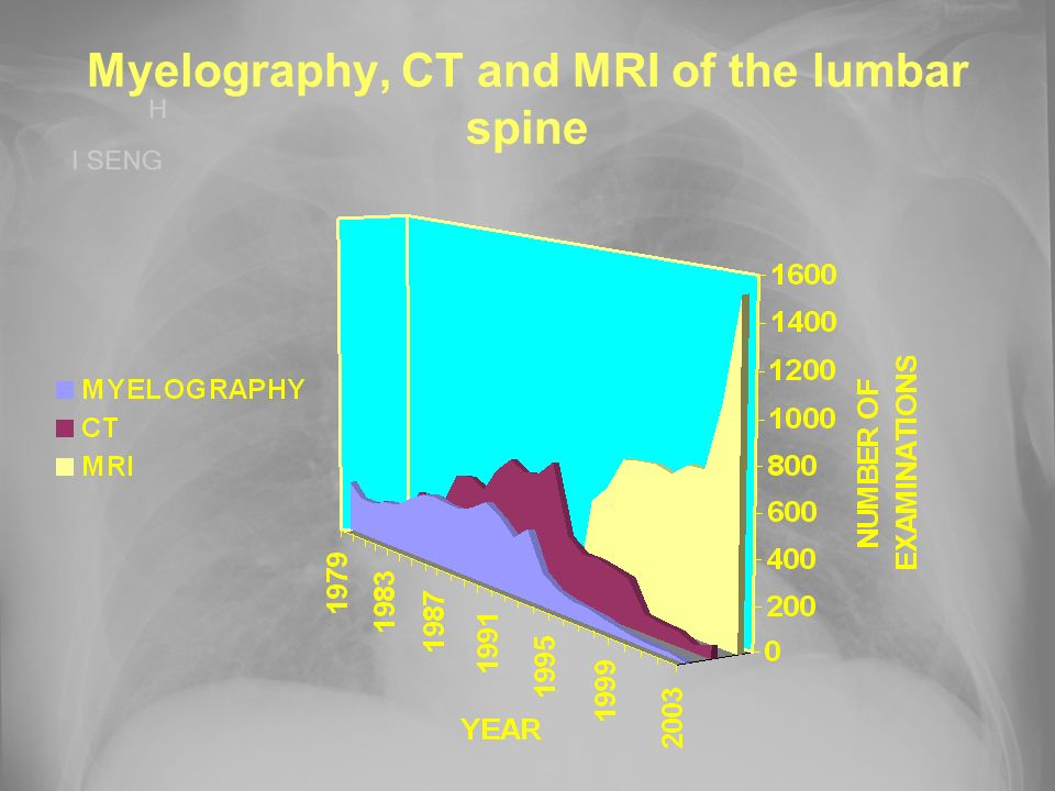 Myelography, CT and MRI of the lumbar spine