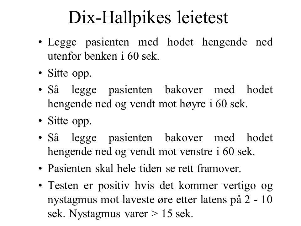 Dix-Hallpikes leietest Legge pasienten med hodet hengende ned utenfor benken i 60 sek.