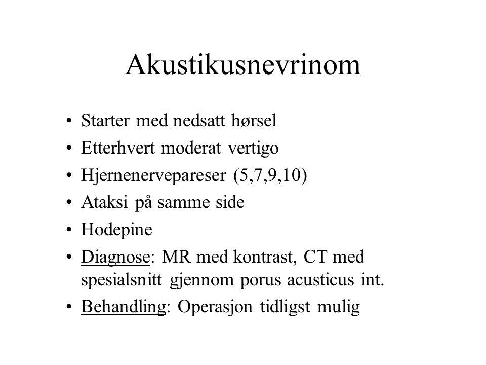 Akustikusnevrinom Starter med nedsatt hørsel Etterhvert moderat vertigo Hjernenervepareser (5,7,9,10) Ataksi på samme side Hodepine Diagnose: MR med kontrast, CT med spesialsnitt gjennom porus acusticus int.