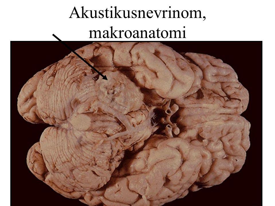 Akustikusnevrinom, makroanatomi