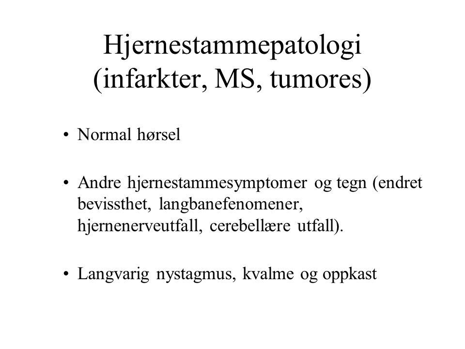Hjernestammepatologi (infarkter, MS, tumores) Normal hørsel Andre hjernestammesymptomer og tegn (endret bevissthet, langbanefenomener, hjernenerveutfall, cerebellære utfall).