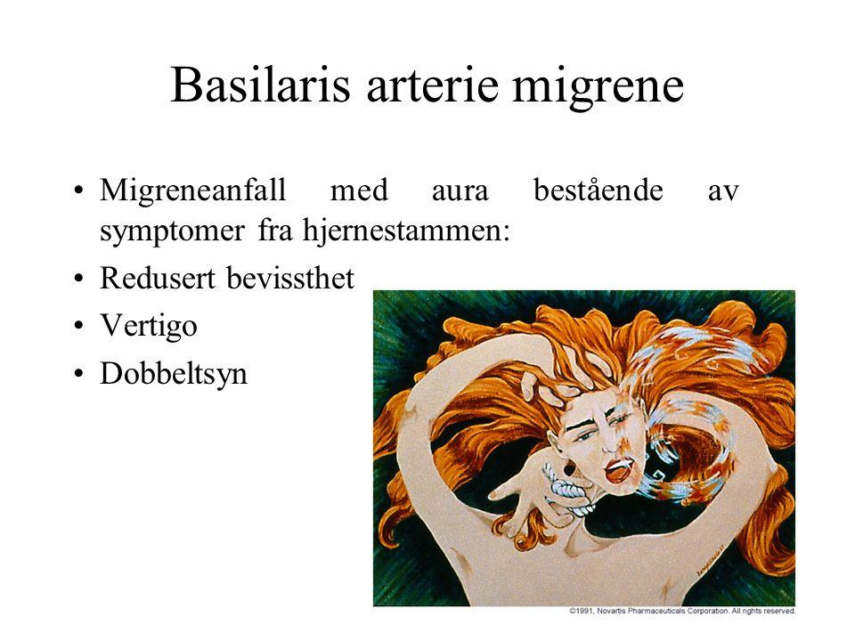Basilaris arterie migrene Migreneanfall med aura bestående av symptomer fra hjernestammen: Redusert bevissthet Vertigo Dobbeltsyn