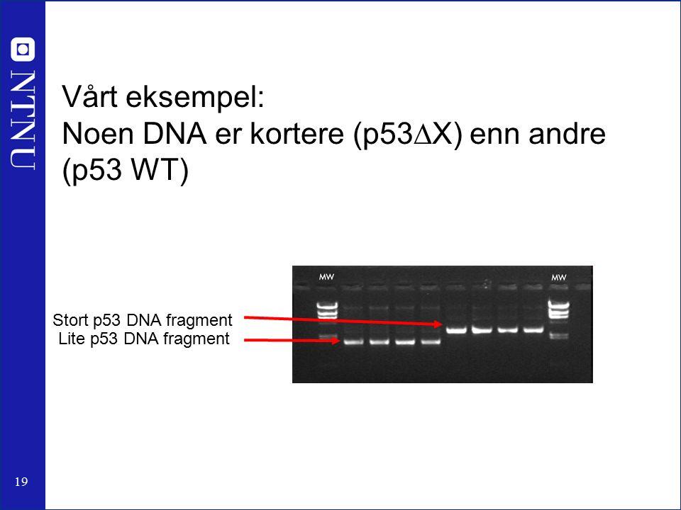 19 Vårt eksempel: Noen DNA er kortere (p53  X) enn andre (p53 WT) Lite p53 DNA fragment Stort p53 DNA fragment