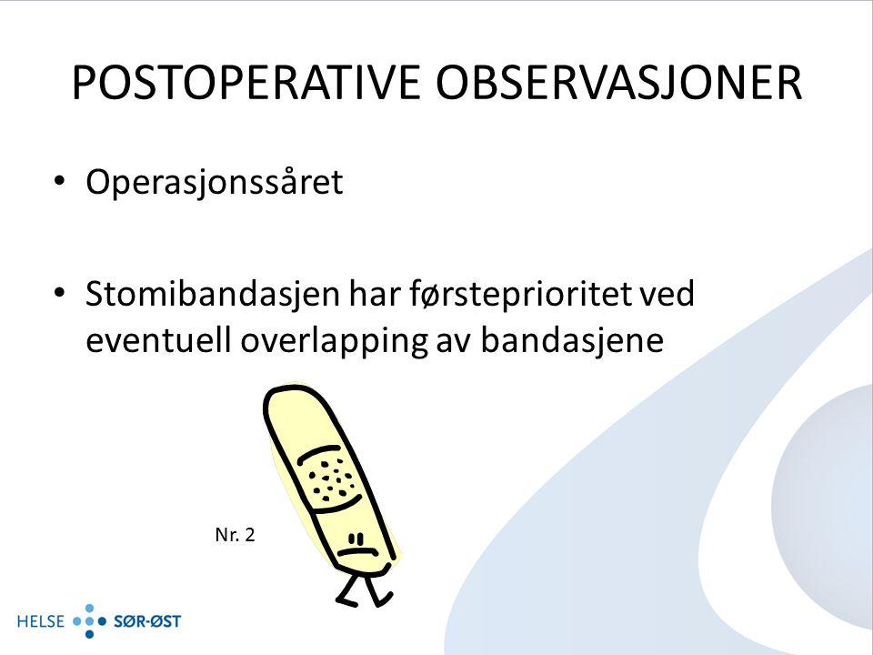 POSTOPERATIVE OBSERVASJONER Operasjonssåret Stomibandasjen har førsteprioritet ved eventuell overlapping av bandasjene Nr.