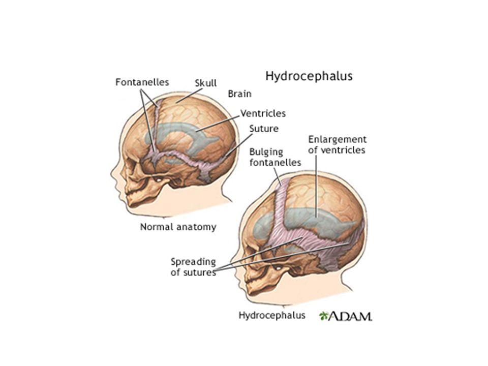 Hodets vekst Hjernen hos det nyfødte barn 10-15% av kroppsvekten (350 -450 g) Hos voksne 2 % av vekten Hodets vekst ≈ hjernens vekst Hodeomkrets er det aktuelle mål for hjernens vekst