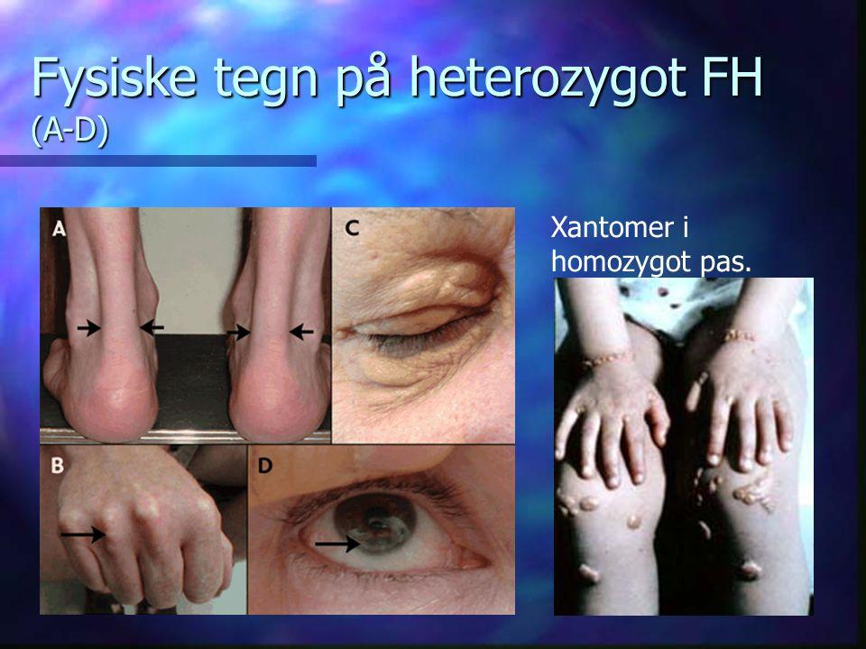 Fysiske tegn på heterozygot FH (A-D) Xantomer i homozygot pas.