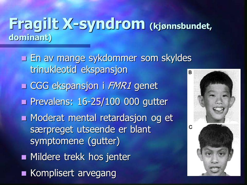 Fragilt X-syndrom (kjønnsbundet, dominant) En av mange sykdommer som skyldes trinukleotid ekspansjon En av mange sykdommer som skyldes trinukleotid ekspansjon CGG ekspansjon i FMR1 genet CGG ekspansjon i FMR1 genet Prevalens: 16-25/100 000 gutter Prevalens: 16-25/100 000 gutter Moderat mental retardasjon og et særpreget utseende er blant symptomene (gutter) Moderat mental retardasjon og et særpreget utseende er blant symptomene (gutter) Mildere trekk hos jenter Mildere trekk hos jenter Komplisert arvegang Komplisert arvegang