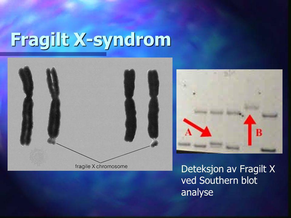 Fragilt X-syndrom Deteksjon av Fragilt X ved Southern blot analyse