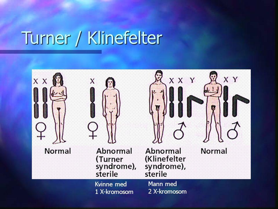 Turner / Klinefelter Kvinne med 1 X-kromosom Mann med 2 X-kromosom