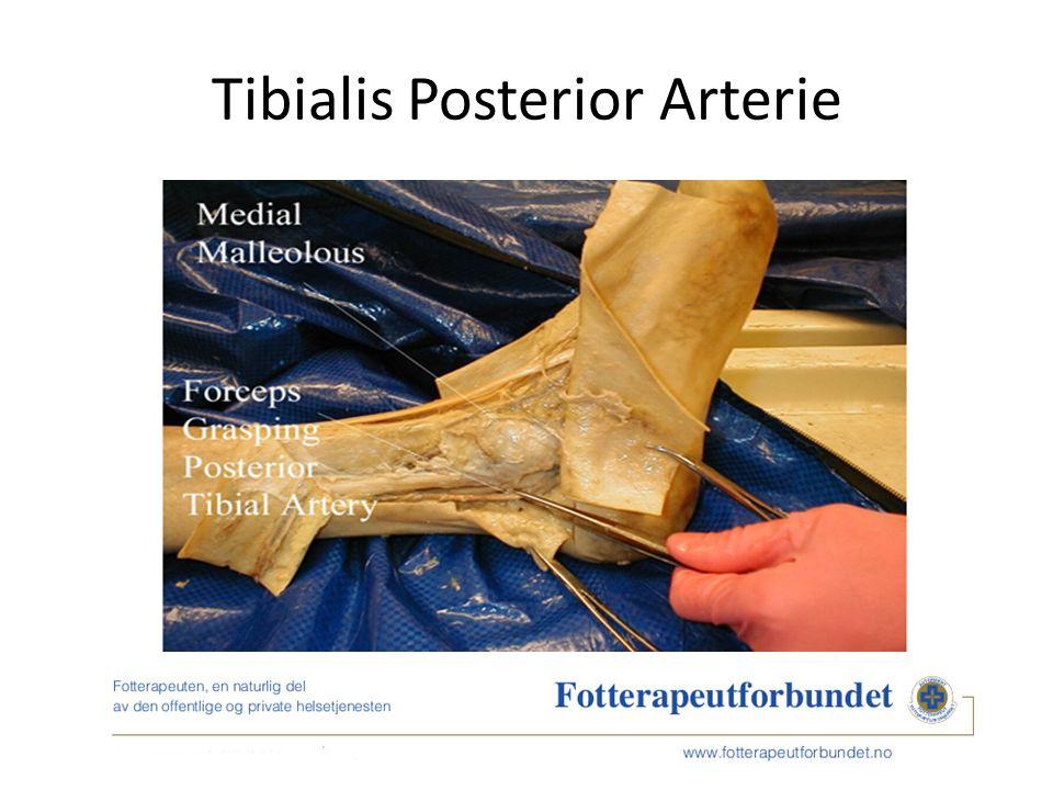 Tibialis Posterior Arterie