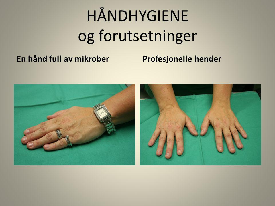 HÅNDHYGIENE og forutsetninger En hånd full av mikroberProfesjonelle hender