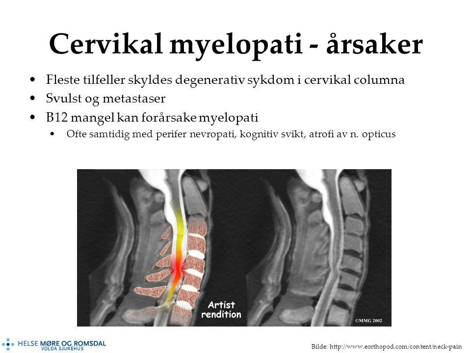 VOLDA SJUKEHUS Cervikal myelopati - årsaker Fleste tilfeller skyldes degenerativ sykdom i cervikal columna Svulst og metastaser B12 mangel kan forårsake myelopati Ofte samtidig med perifer nevropati, kognitiv svikt, atrofi av n.