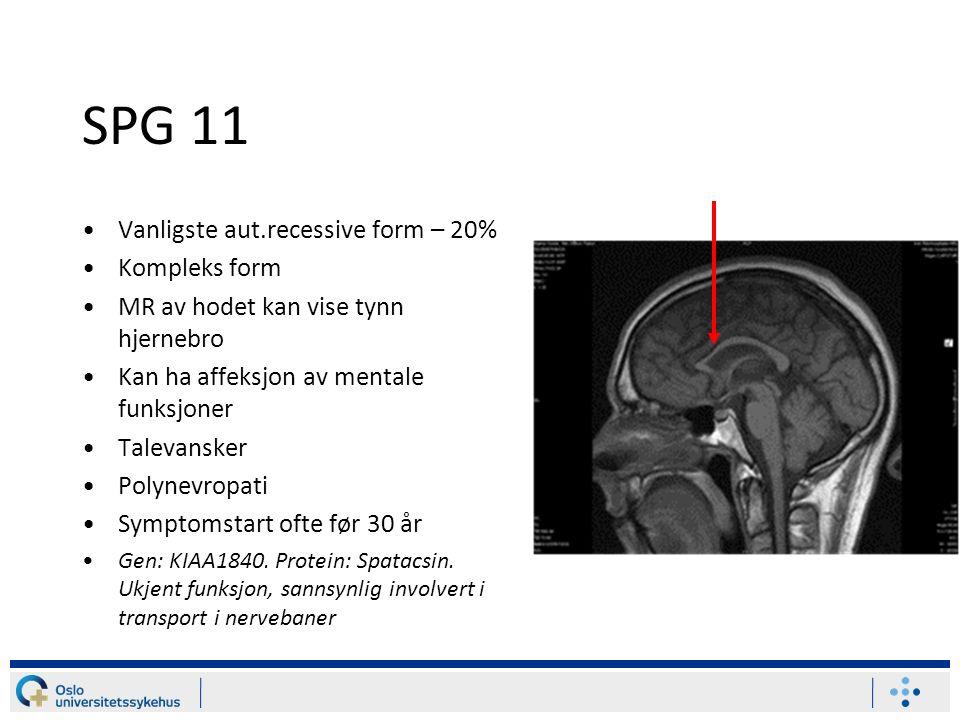 SPG 11 Vanligste aut.recessive form – 20% Kompleks form MR av hodet kan vise tynn hjernebro Kan ha affeksjon av mentale funksjoner Talevansker Polynevropati Symptomstart ofte før 30 år Gen: KIAA1840.