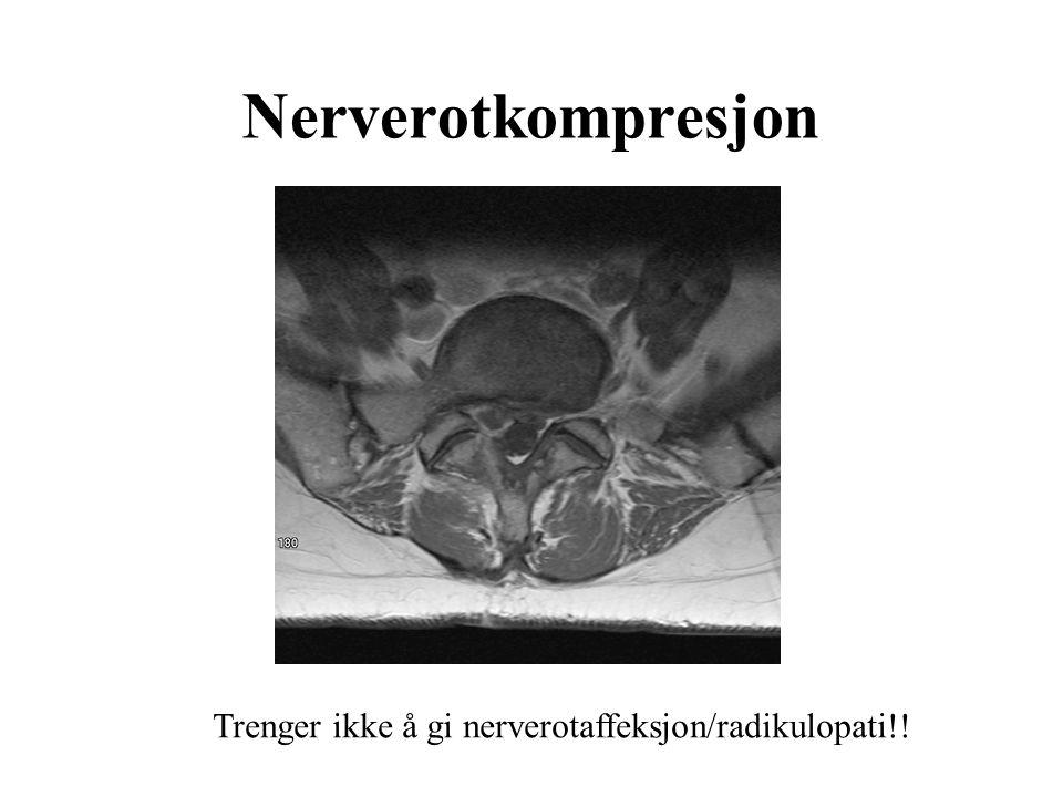 Nerverotkompresjon Trenger ikke å gi nerverotaffeksjon/radikulopati!!