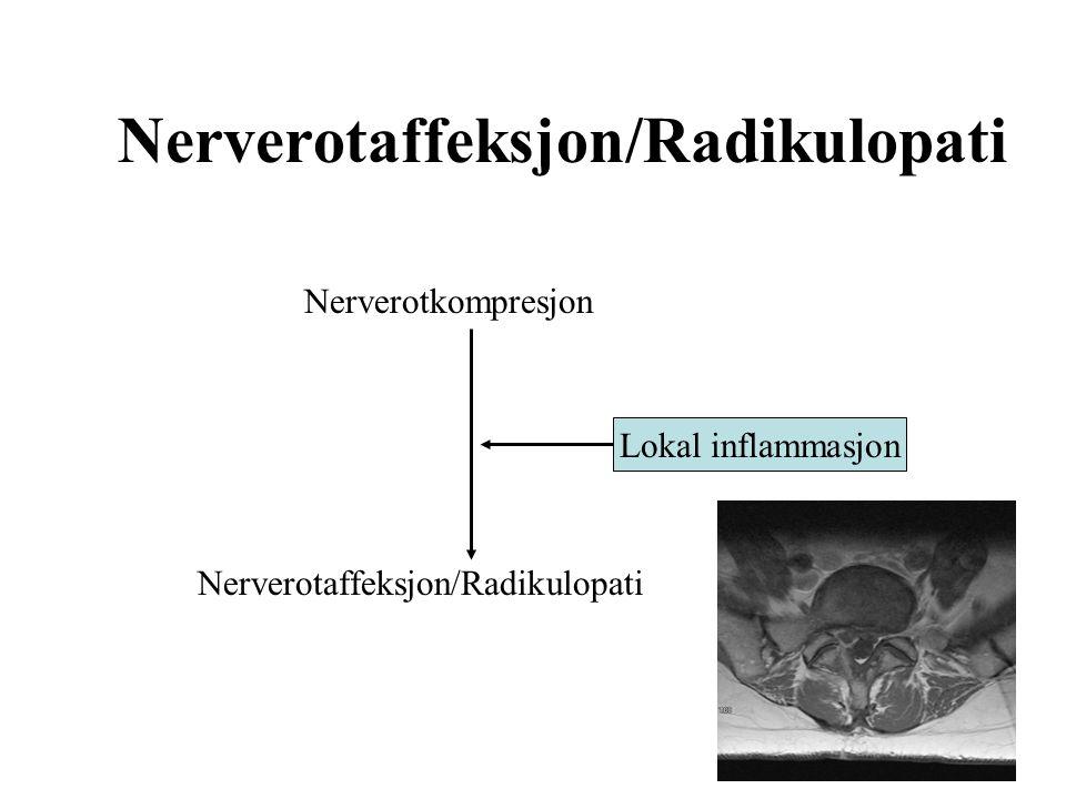Nerverotaffeksjon/Radikulopati Nerverotkompresjon Nerverotaffeksjon/Radikulopati Lokal inflammasjon