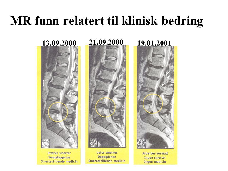 MR funn relatert til klinisk bedring 21.09.2000 19.01.200113.09.2000