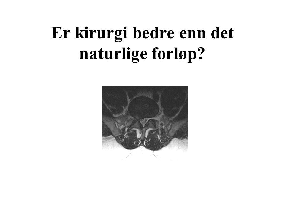 Er kirurgi bedre enn det naturlige forløp