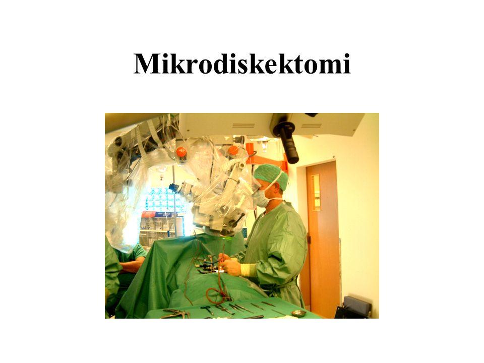 Mikrodiskektomi