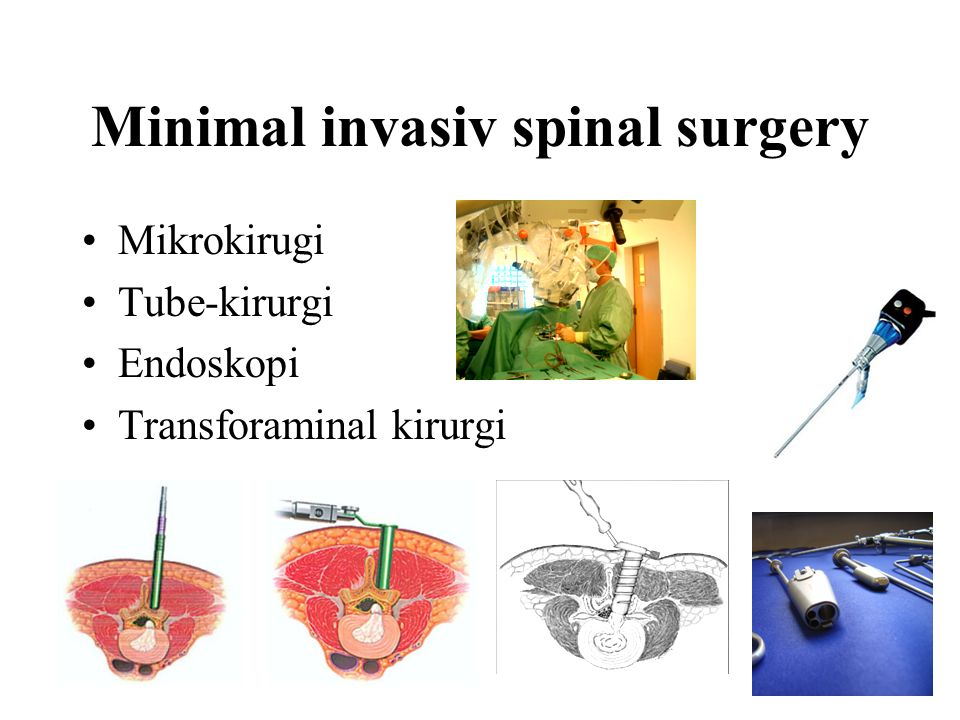 Minimal invasiv spinal surgery Mikrokirugi Tube-kirurgi Endoskopi Transforaminal kirurgi