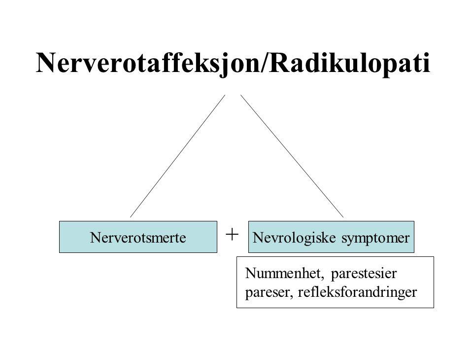Nerverotaffeksjon/Radikulopati Nummenhet, parestesier pareser, refleksforandringer NerverotsmerteNevrologiske symptomer +