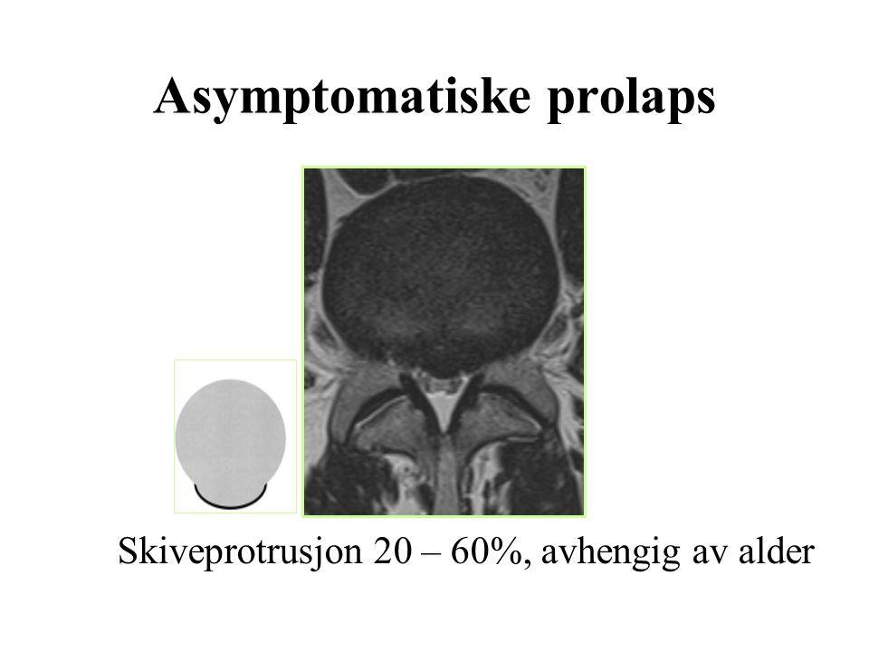 Asymptomatiske prolaps Skiveprotrusjon 20 – 60%, avhengig av alder