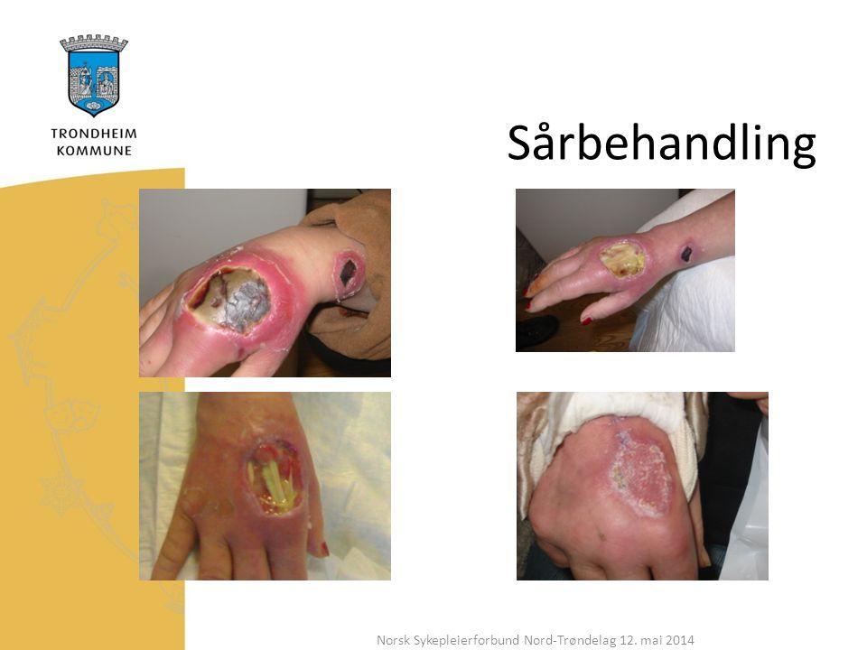 Sårbehandling Norsk Sykepleierforbund Nord-Trøndelag 12. mai 2014