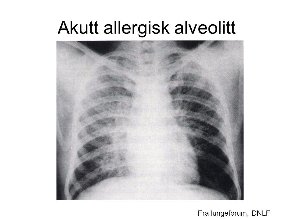 Akutt allergisk alveolitt Fra lungeforum, DNLF