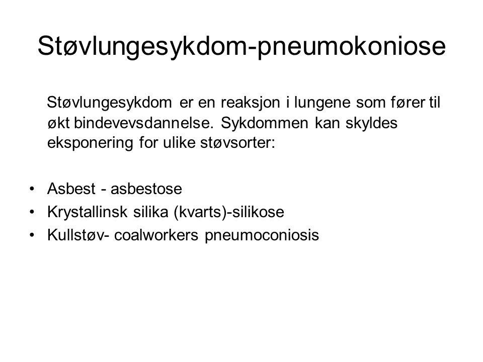 Støvlungesykdom-pneumokoniose Støvlungesykdom er en reaksjon i lungene som fører til økt bindevevsdannelse. Sykdommen kan skyldes eksponering for ulik