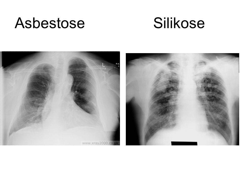 Asbestose Silikose