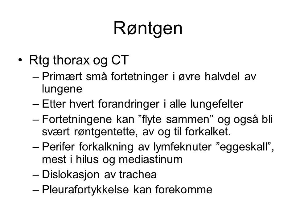 """Røntgen Rtg thorax og CT –Primært små fortetninger i øvre halvdel av lungene –Etter hvert forandringer i alle lungefelter –Fortetningene kan """"flyte sa"""