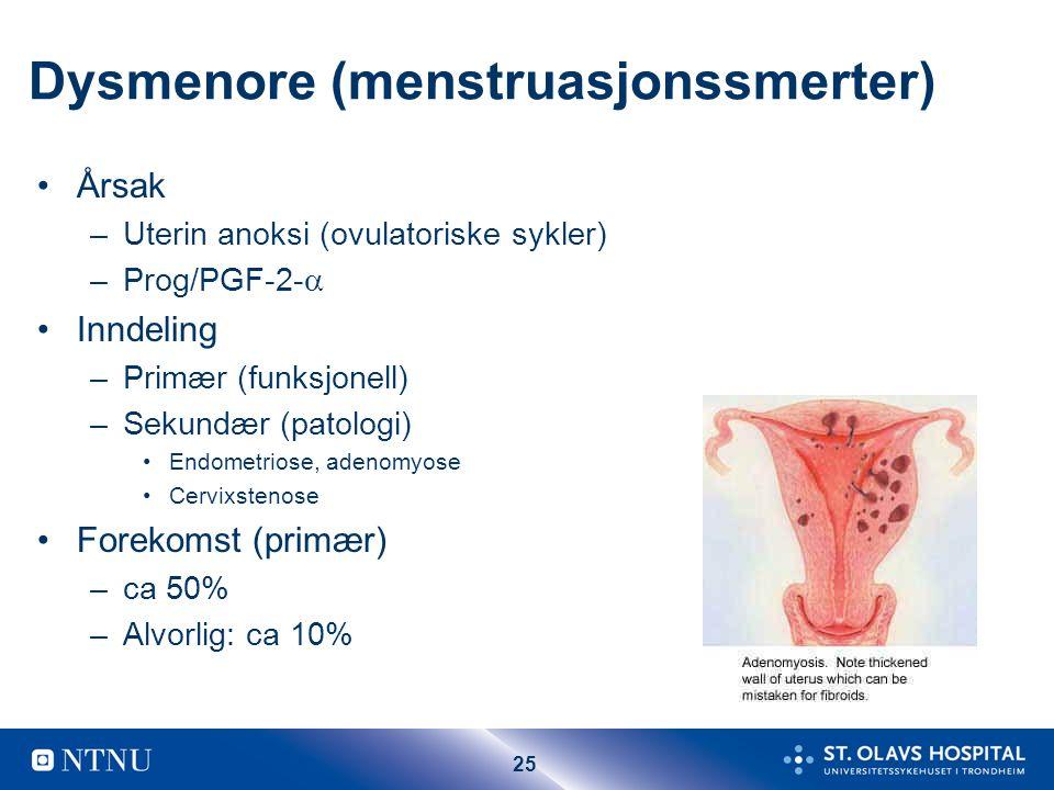 25 Dysmenore (menstruasjonssmerter) Årsak –Uterin anoksi (ovulatoriske sykler) –Prog/PGF-2-  Inndeling –Primær (funksjonell) –Sekundær (patologi) Endometriose, adenomyose Cervixstenose Forekomst (primær) –ca 50% –Alvorlig: ca 10%