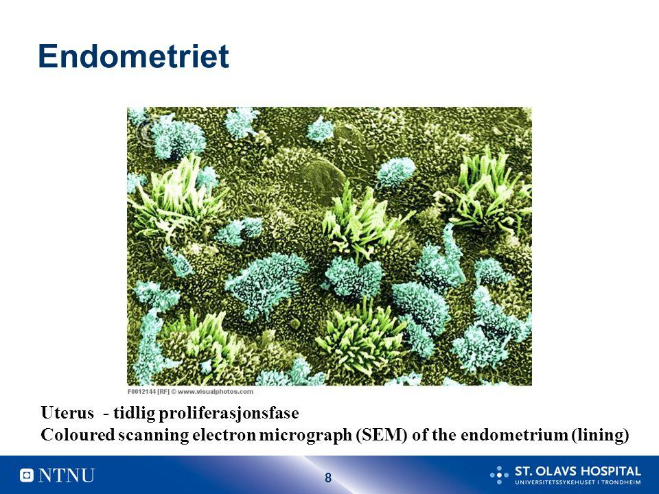 Endometrium Stratum funktionalis Stratum basalis Myometrium