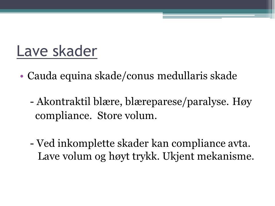 Lave skader Cauda equina skade/conus medullaris skade - Akontraktil blære, blæreparese/paralyse. Høy compliance. Store volum. - Ved inkomplette skader
