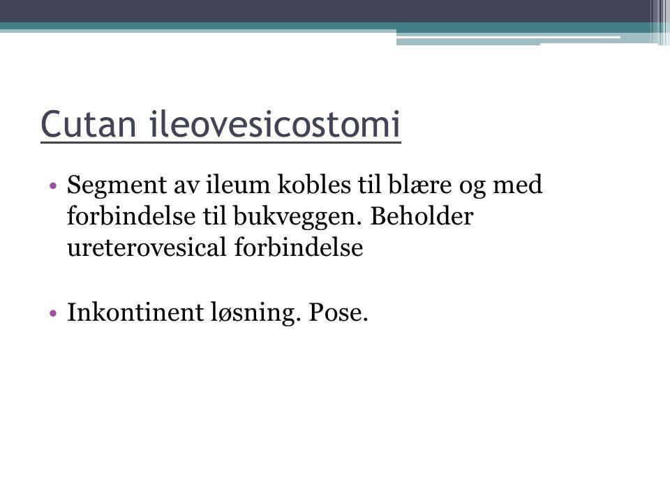 Cutan ileovesicostomi Segment av ileum kobles til blære og med forbindelse til bukveggen. Beholder ureterovesical forbindelse Inkontinent løsning. Pos